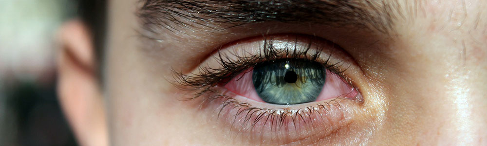 The biggest difference between pink eye and allergy is the pus and mucus that can gather in the eye.